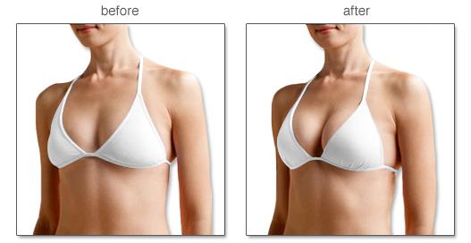 kem nở ngực, kết quả dùng kem nở ngực