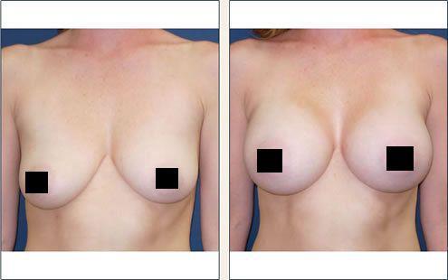 Ngực căng tròn hơn, chống chảy sệ