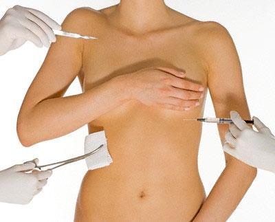 Phẫu thuật nâng ngực có nguy hiểm không